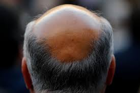 3 ways to curb premature baldness